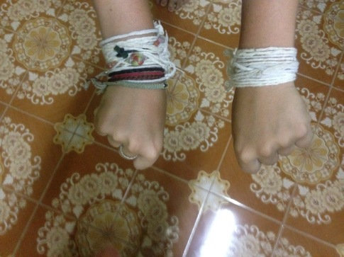 Tied white strings around wrists from a Baci Welcoming Ceremony in Laos